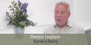 Steve Dental Implant